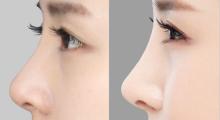 深圳雅美做鼻子整形要花多少钱。...