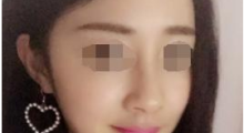 深圳天丽硅胶隆鼻需要多少钱呢?...