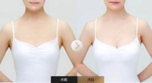 广州美莱做丰胸手术价格是多少呢?其影响因素有哪些呢?...