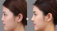 上海比华利做韩式隆鼻手术的效果能保持多久?...