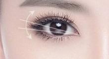 成都市西区医院割双眼皮要多长时间恢复?割双眼皮后如何护理?...