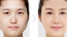 双眼皮手术怎么做更自然?杭州华山连天做双眼皮多少钱?...