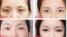 杭州华山连天告诉你,最好的双眼皮手术是哪一种?...