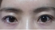 杭州时光做双眼皮修复多少钱?失败的双眼皮手术能修复吗?...