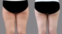 大腿抽脂术后应注意什么?...