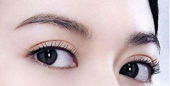 成都中科美美埋线双眼皮手术可以保持几年?