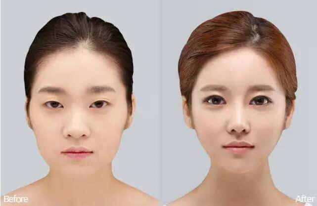 成都中科美美埋线双眼皮手术安全吗?