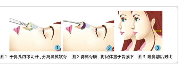 广州假体隆鼻的价格是多少?技术怎么样?