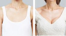 南京东美假体隆胸三种治疗方法 手术效果明显...