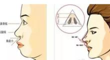 昆明艺星做膨体隆鼻多少钱?效果怎么样?...
