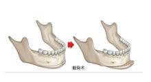 杭州瑞丽告诉你,什么是磨骨手术?...