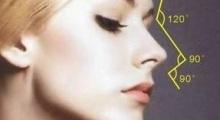 膨体隆鼻打造美鼻成为气质美女...