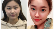 深圳禾丽做面部线雕需要多少钱?面部线雕案例分享...