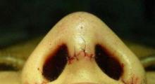 鼻翼缩小整形方法有哪些?合肥立新做鼻翼缩小多少钱?...