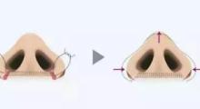 北京壹加壹做隆鼻多少钱?隆鼻假体有哪几种材料?...