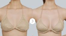 成都悦好做,隆胸手术如何选择材料更安全?...