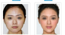 安全塑美之吸脂瘦脸会不会危害健康...