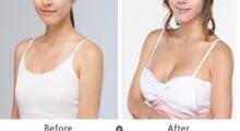 重庆艺星告诉你,隆胸手术有哪些方法?...