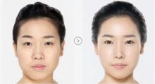杭州格莱美告诉你,做假体隆鼻效果能维持多少年?...