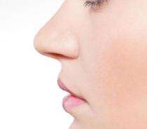 隆鼻取出假体后鼻梁会变塌吗?