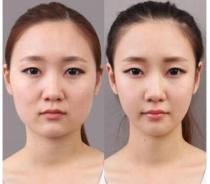 瘦脸针要多少钱?黄石中爱定制瘦脸针怎么样?