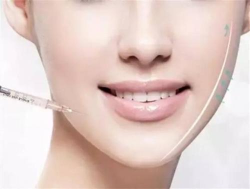 瘦脸针注射几次可以定型呢?