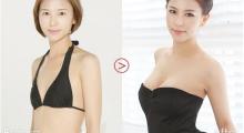 上海艺星告诉你,隆胸时如何选择假体大小?...