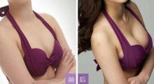 深圳曙光告诉你,什么是无痕隆胸,它有哪些特点?...
