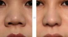 广州鼻头肥大手术能持续多久呢?...