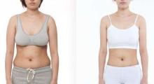 嘉兴做吸脂减肥手术的费用大约是多少呢?...
