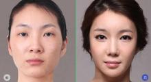 南京鼻综合手术的一般要花多少钱?...