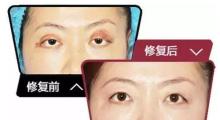 杭州修双眼皮要多少钱?...
