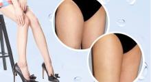 大腿吸脂效果是永久性的吗?...