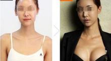 吕梁做自体脂肪隆胸的效果能持续多久呢...