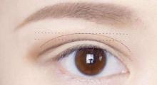 无锡割双眼皮开眼角需要多少钱...