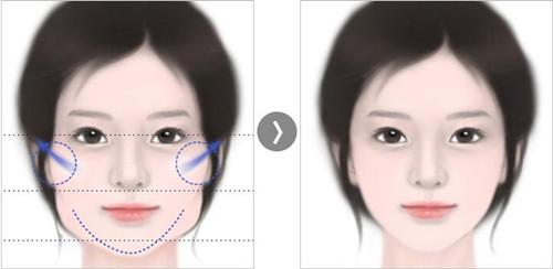 面部整形手术的7种方法