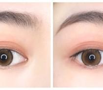 开眼角手术的恢复时间及需要注意的点