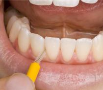 如何使用家庭疗法去除牙垢