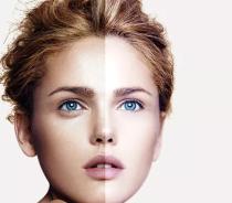 手术切除眼袋的效果可以维持多久呢