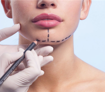 下巴整形手术能改变你的脸型吗