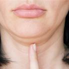 有哪些疾病会导致双下巴