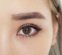 双眼皮手术是如何进行的