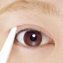 双眼皮手术后有什么注意事项
