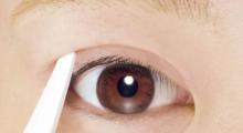 双眼皮手术后有什么注意事项...