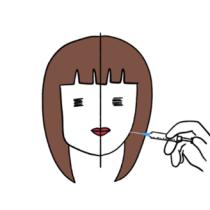 什么是V-line手术