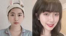 减肥不瘦脸,在上海天大医疗美容做完吸脂瘦脸直接小鸟依人...