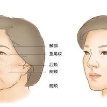上海玫瑰医学美容医院的自体脂肪移植怎么样?